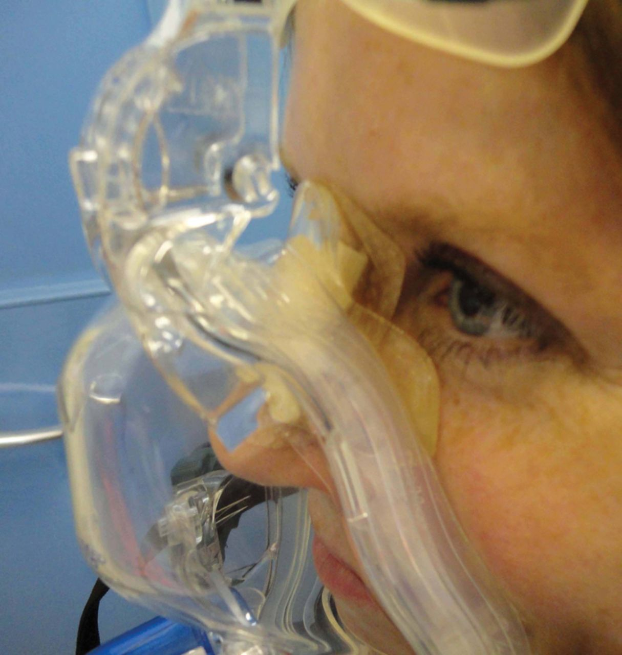 How To Avoid Interface Problems In Acute Noninvasive Ventilation