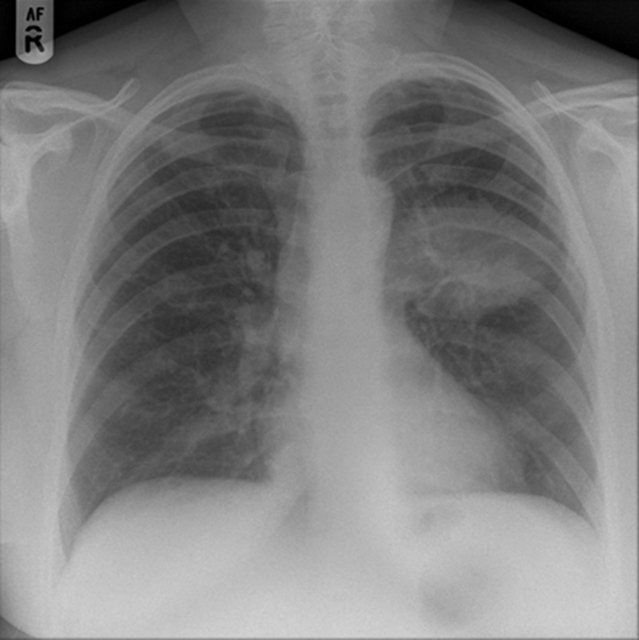management of breathlessness in lung cancer Lung cancer pleural effusion the management of breathlessness includes determining the need for emergency admission by assessing the person's blood pressure.