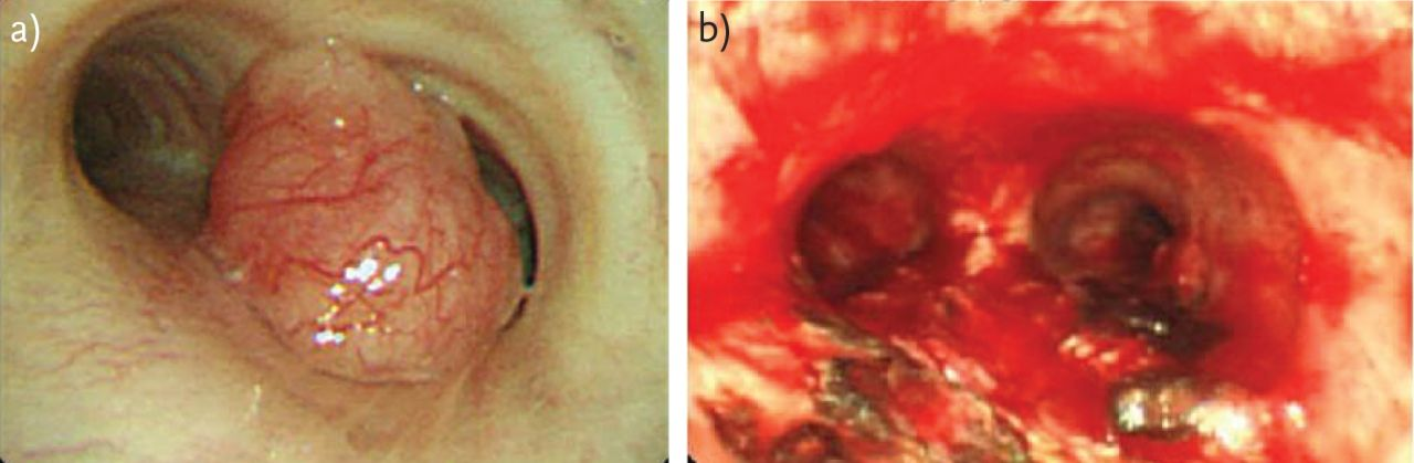 interventional bronchoscopy in the management of thoracic