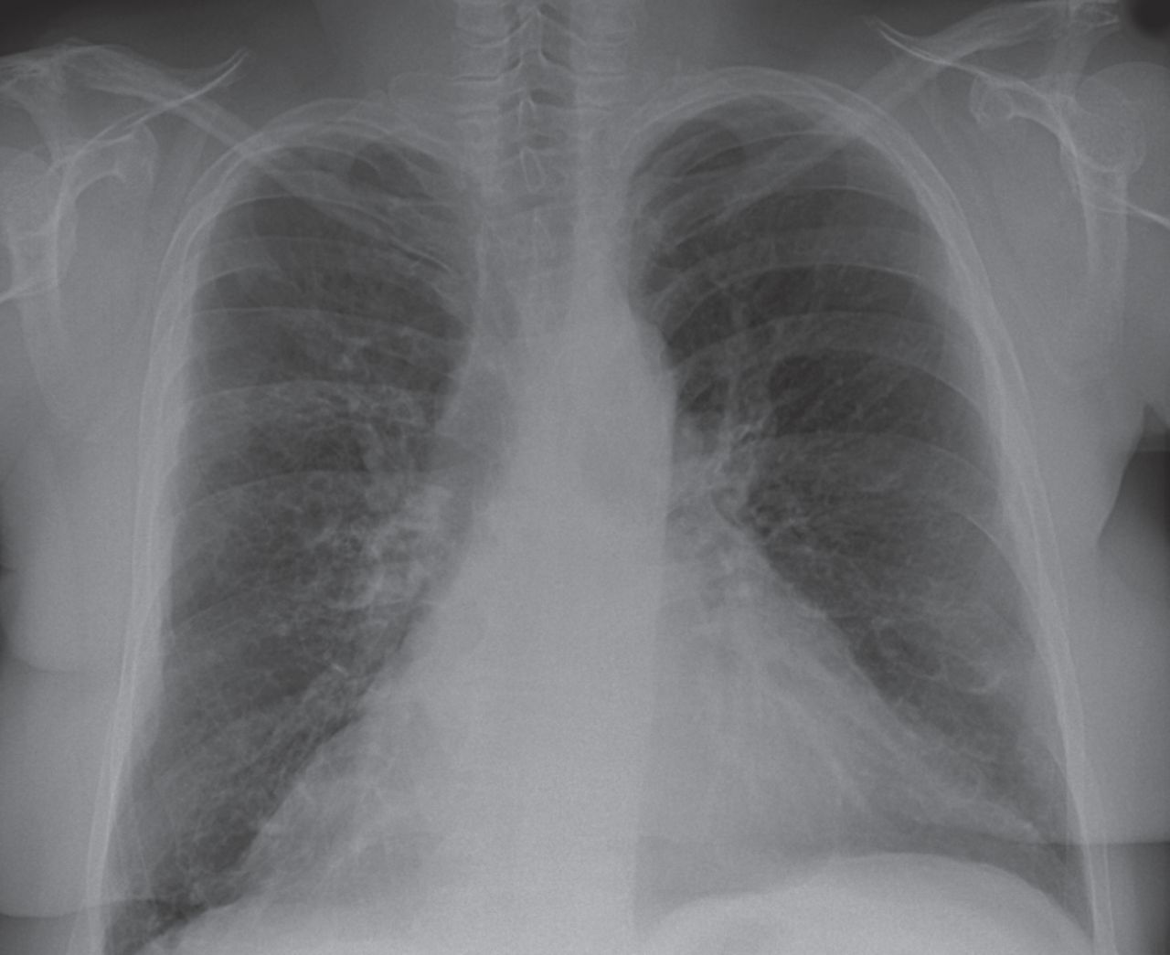 Radiology corner   European Respiratory Society