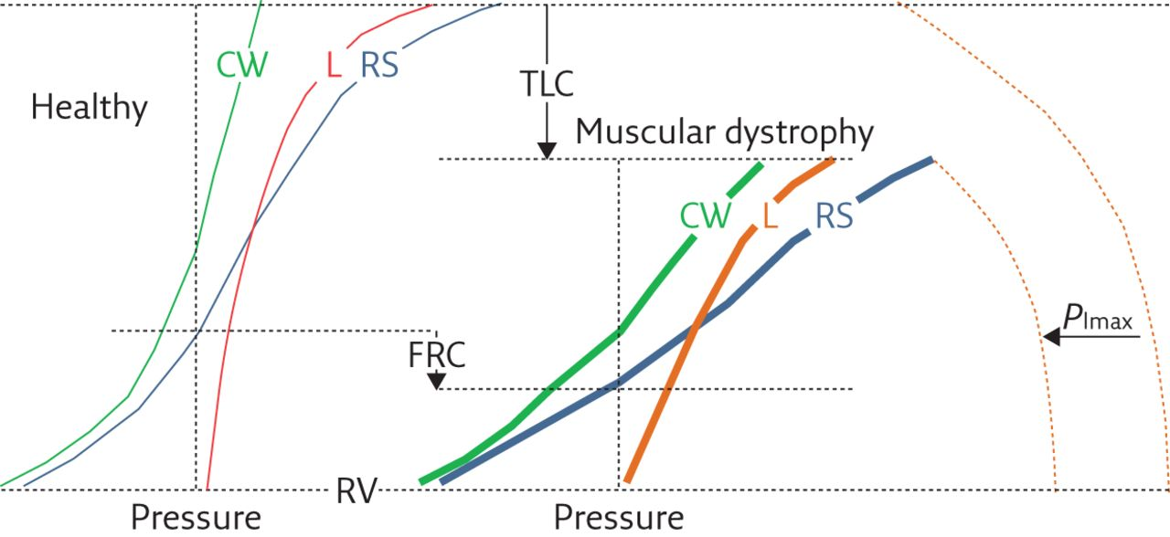 Physiology of respiratory disturbances in muscular