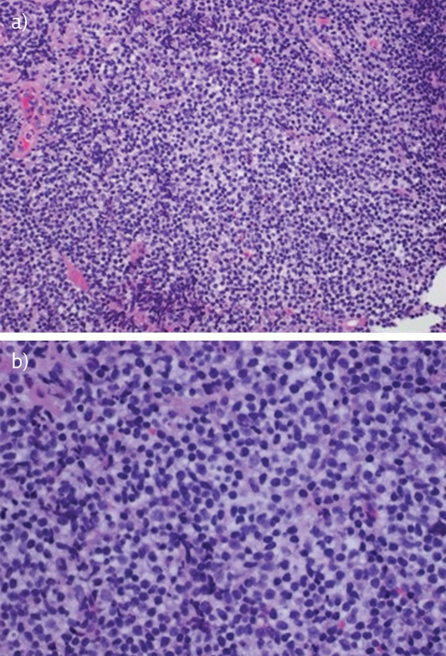 a 61 year old male with generalised lymphadenopathy