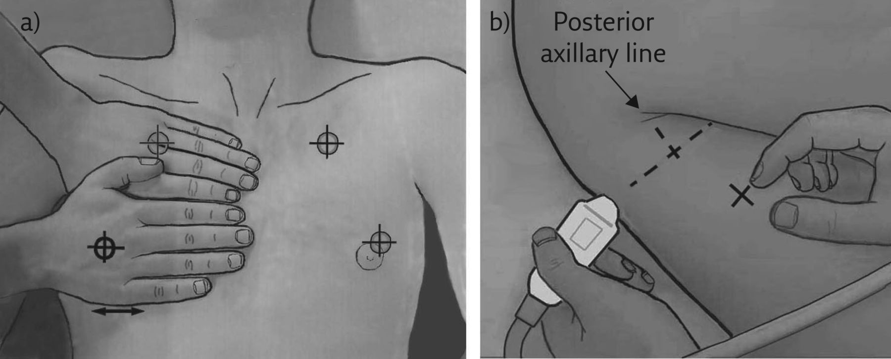 Novel approaches to ultrasonography of the lung and pleural