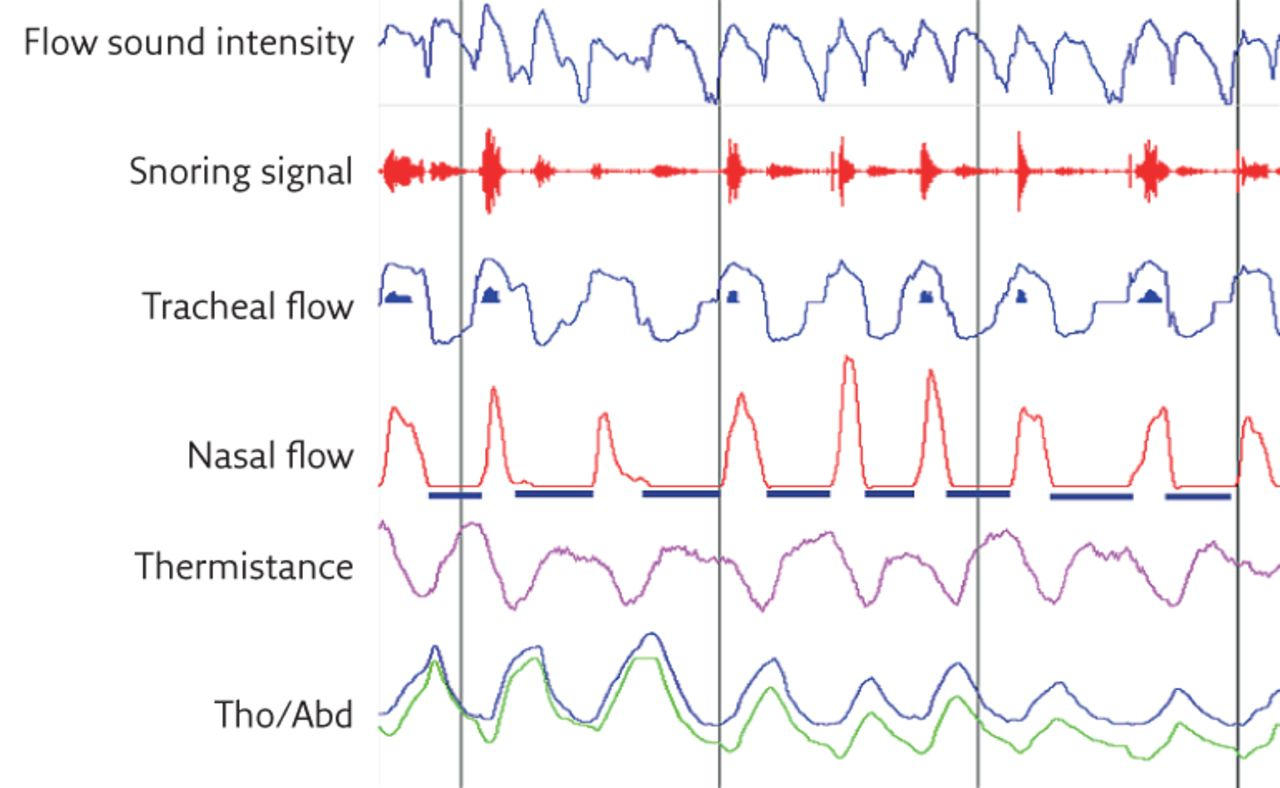The use of tracheal sounds for the diagnosis of sleep apnoea