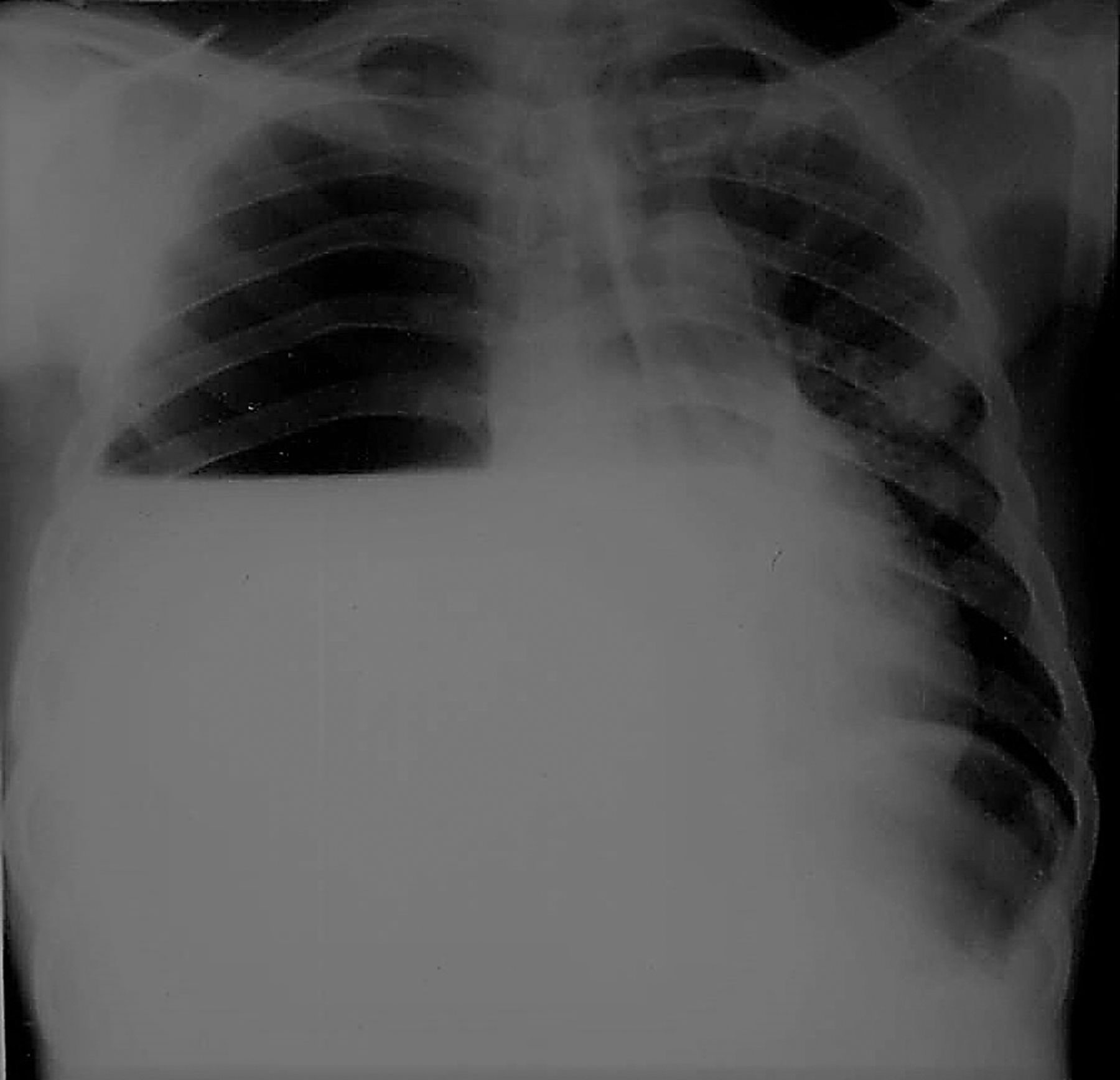 A 50-year-old male with fever, cough, dyspnoea, chest pain