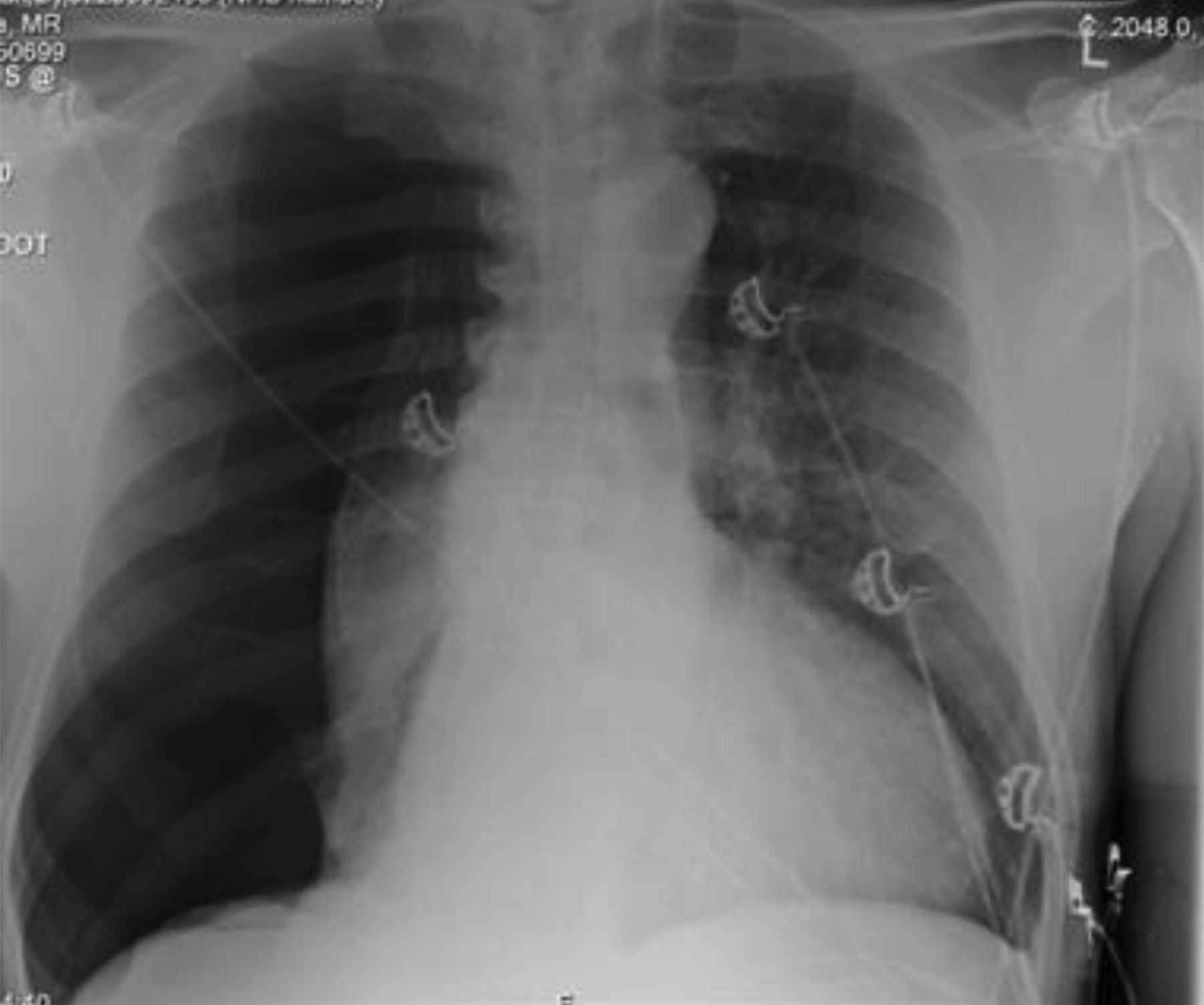 An interesting case of recurrent shortness of breath and pleuritic