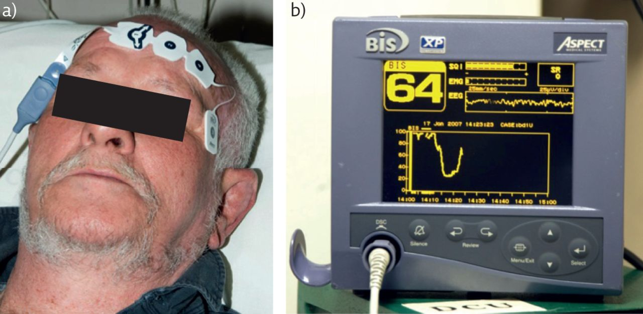Tailoring surgical interventions to treat obstructive sleep apnoea