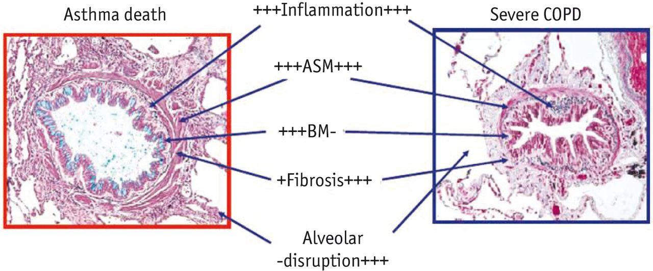 cardiac asthma vs bronchial asthma pdf