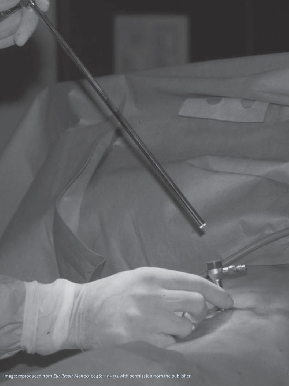 Endoscopy Suite: History And Clinical Use Of Thoracoscopy/pleuroscopy In