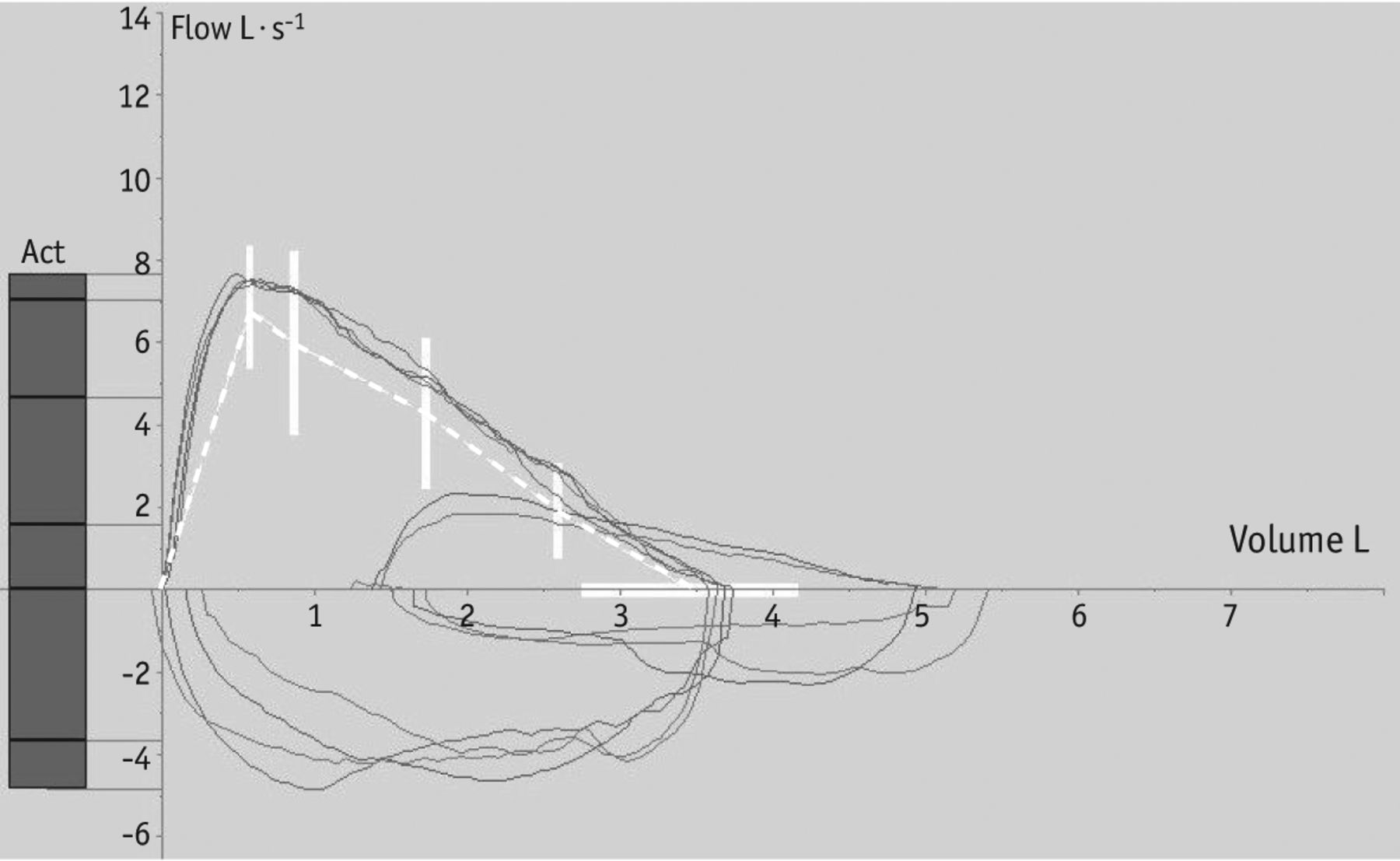 Spirometry Step By European Respiratory Society Random Noise Generator Electronic Circuit Schematic Download Figure