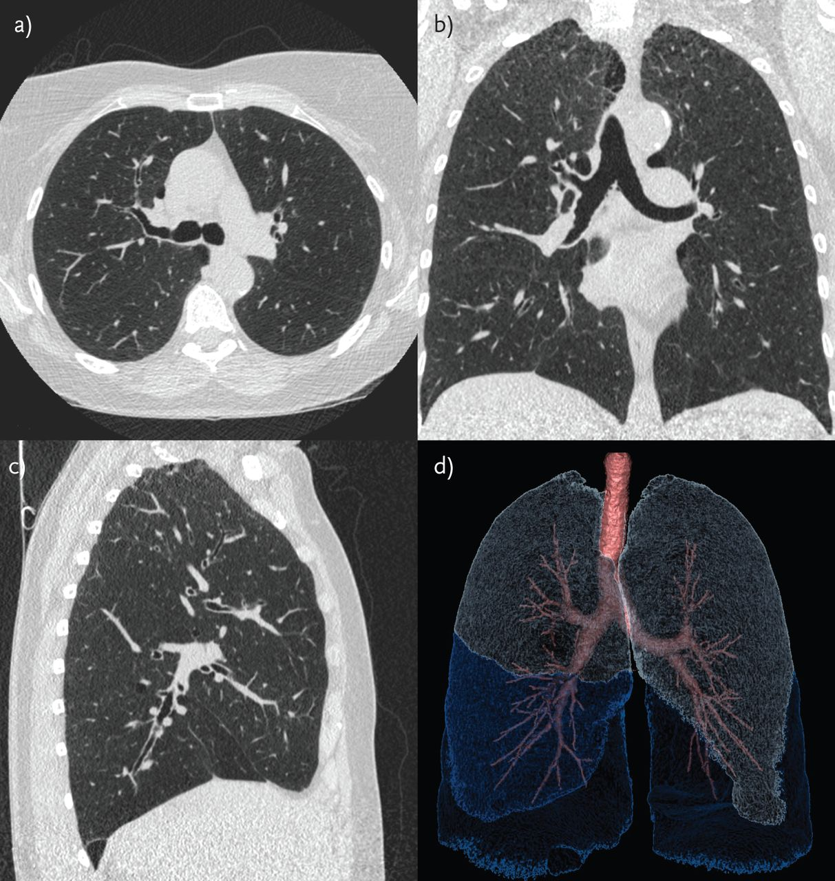 Lung parenchyma density and airwall thickness in airway diseases ...