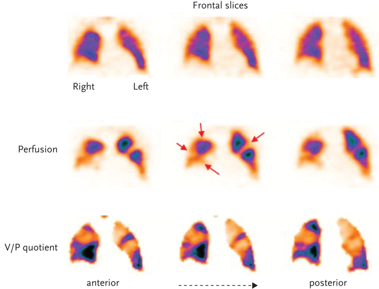 Hybrid SPECT/CT imaging in clinical practice