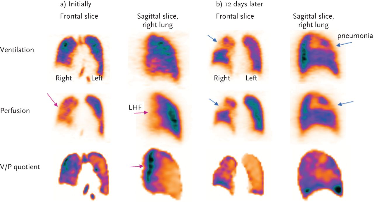 potential of hybrid v/p spect–low-dose ct in lung diagnostics