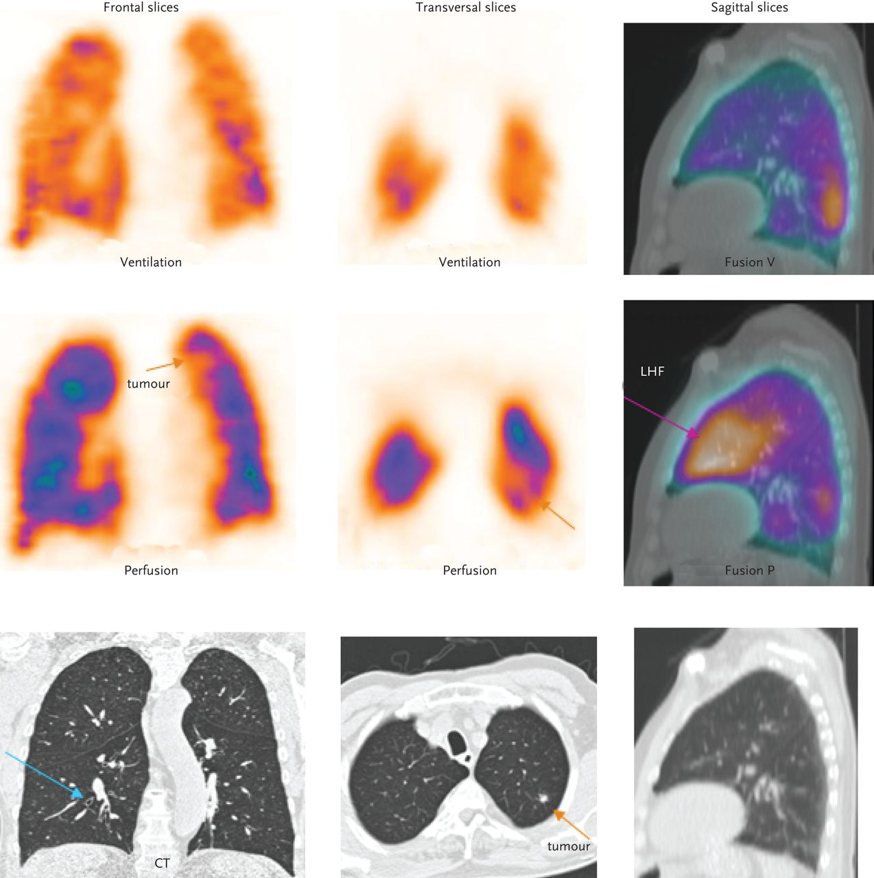 spect scan heart