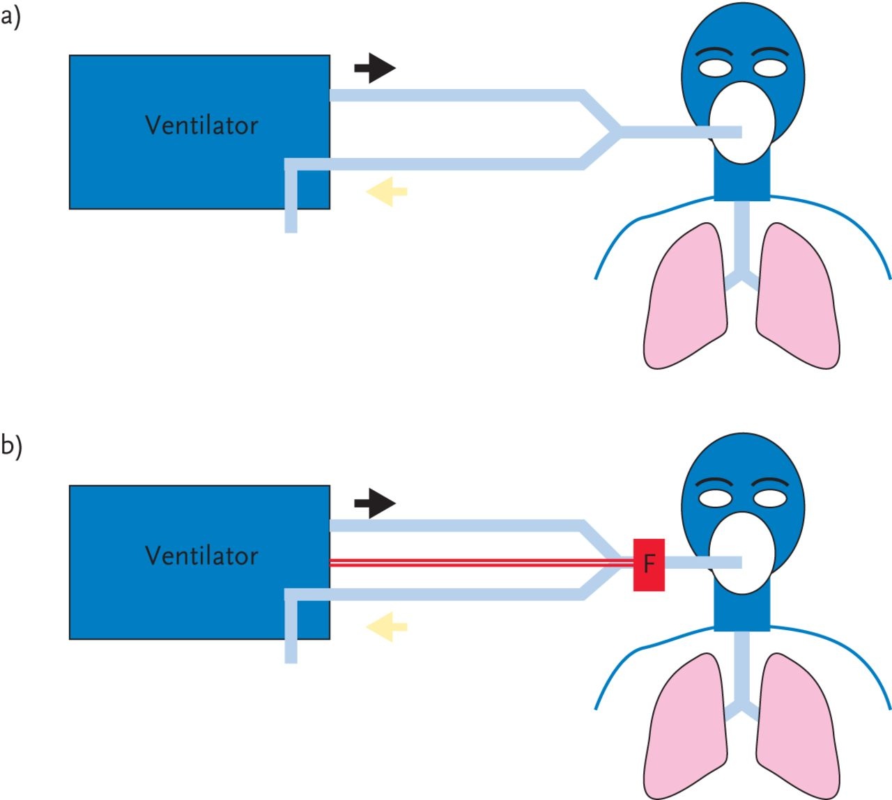 Ventilator besed | Healthily and Active Life | Recreation