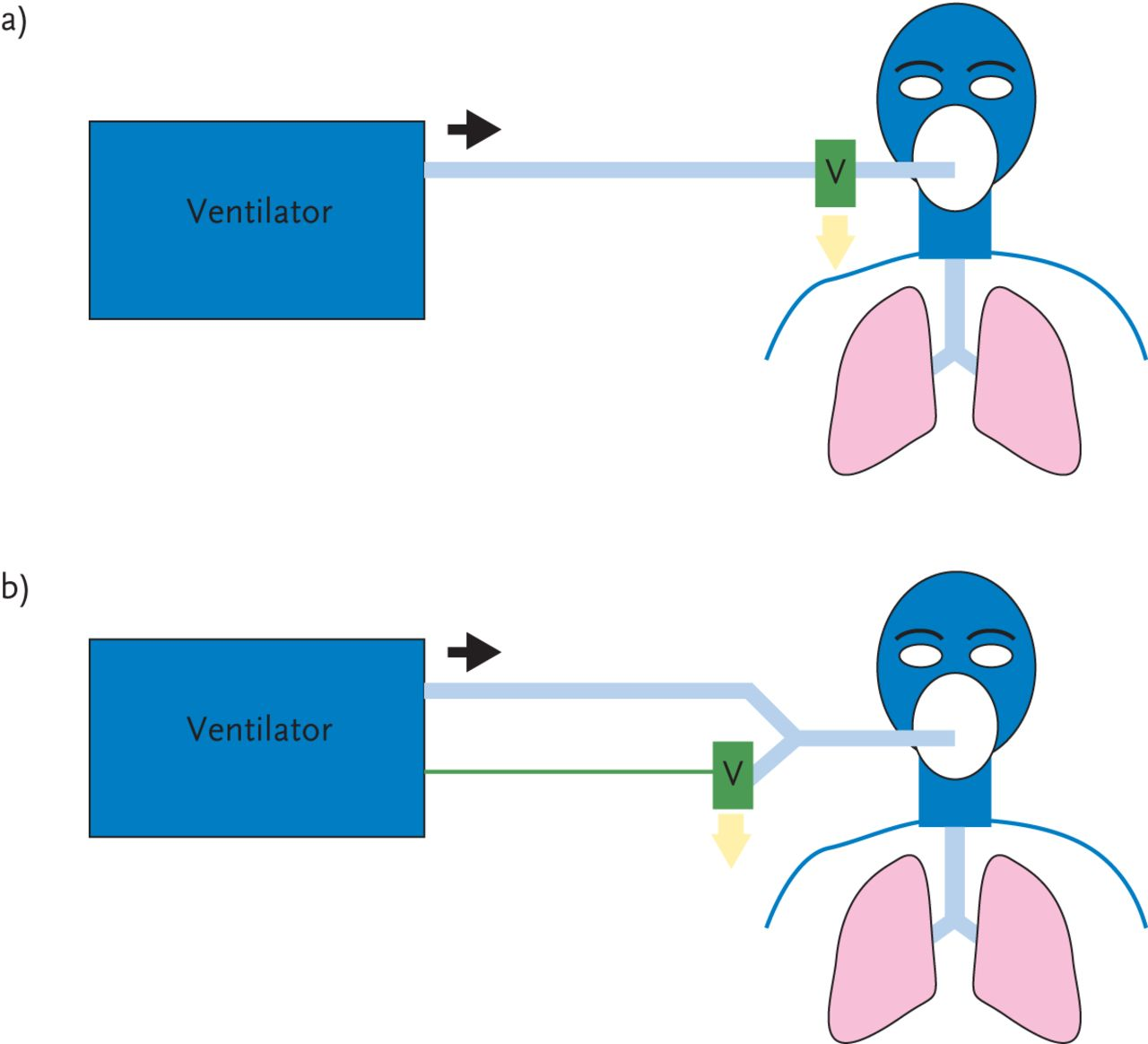 Choosing A Ventilator For Home Mechanical Ventilation European Figure 2 Short Circuit Occurs When The Battery S Positive And Download
