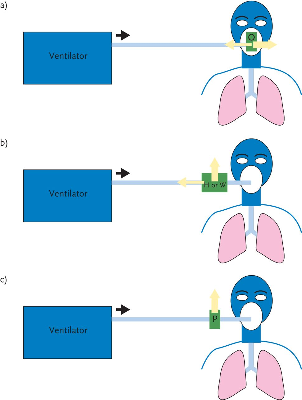 Choosing A Ventilator For Home Mechanical Ventilation European Click On The Circuit To See Larger More Readable Version Download Figure